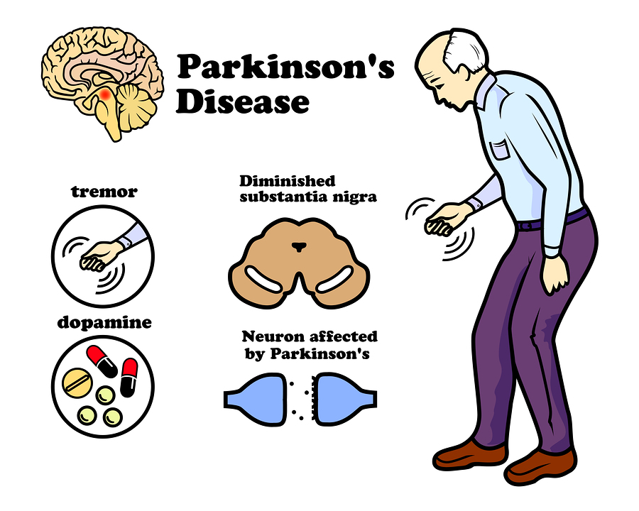 Parkinson's Disease:  Signs, Symptoms And Treatment
