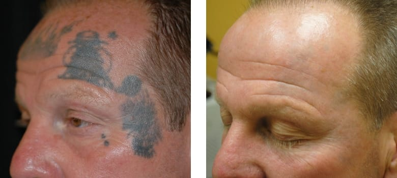 Top 2 Important Things You Must Know About Tattoo Numbing Cream